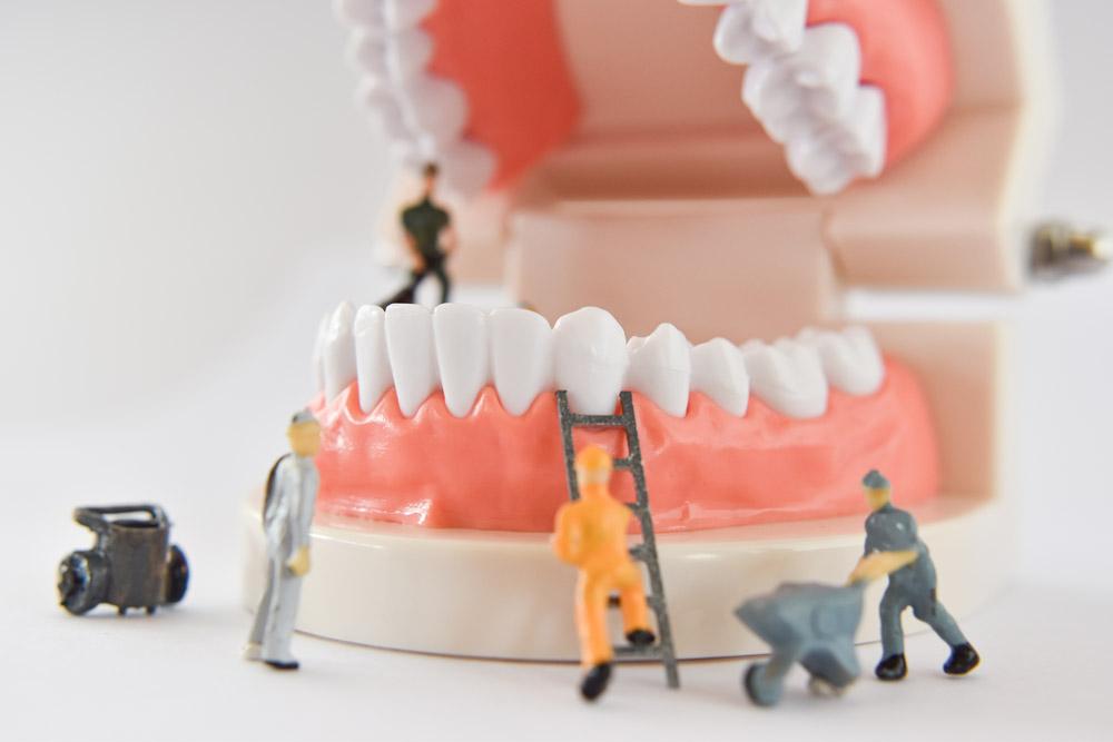 Limpeza nos dentes: de quanto em quanto tempo precisa fazer?